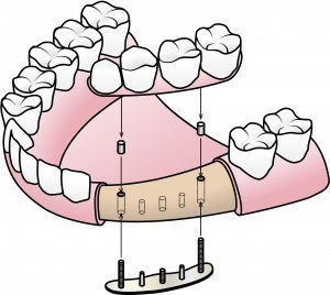 Dental crowns picture of implanting.