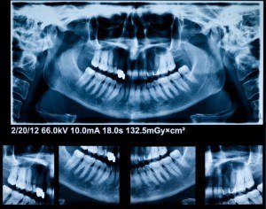 X-ray of patient's teeth and mouth for root canal treatment