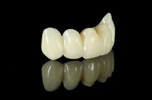 Photo of dental bridges set.