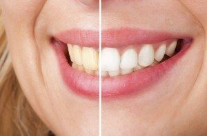 Before and after of a dental teeth whitening procedure.