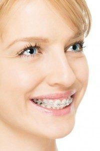 Blonde woman smiling with braces on.
