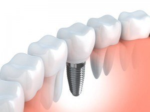 Tooth human dental implants (done in 3d graphics).