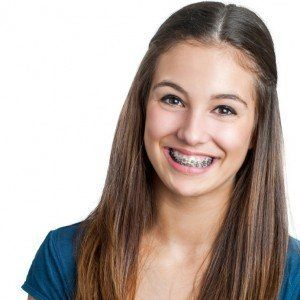 Young teenage girl smiling with braces.